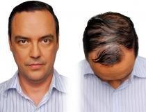 ESCOVA HAIR LASER COMBO - OT - Bivolt - Polishop