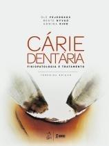 Livro - Cárie Dentária - A Doença e seu Tratamento Clínico - Ferjeskov - Santos