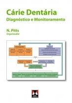Livro - Cárie Dentária - Diagnóstico e Monitoramento - Pitts - Artes médicas