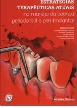 Livro - Estratégias Terapêuticas Atuais  No Manejo da Doença Periodontal e Peri-implantar - Romito - Napoleão