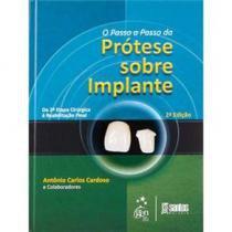 Livro - Passo-a-Passo da Prótese Sobre Implantes, O - Cardoso - Santos
