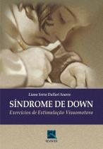 Sindrome De Down - Revinter