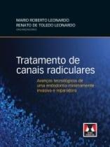 Tratamento De Canais Radiculares - Artes Medicas - 1 Ed - 1